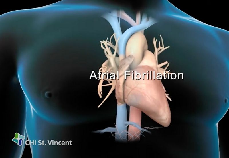 Does Atrial Fibrillation Diagnosis Increase With Age?