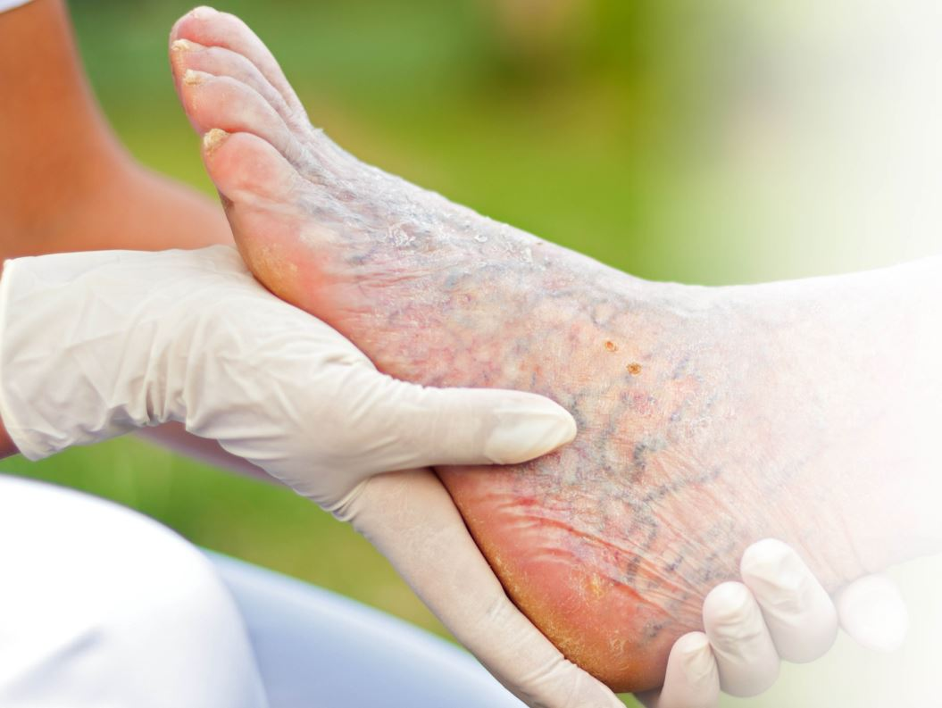 Let's Talk about Foot Health and Chronic Wounds