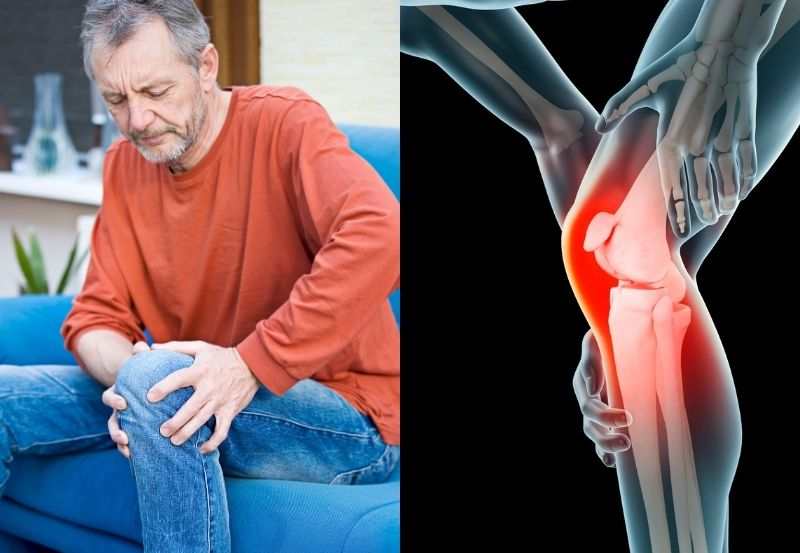 Managing Joint Pain Without Knee Replacement Surgery