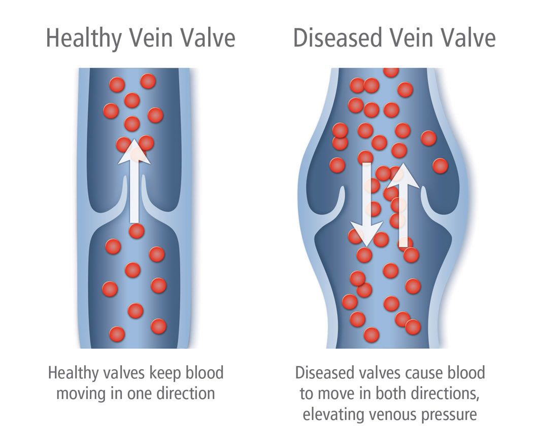 Varicose Vein Treatment Vein Ablation